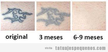 Crema eliminar tatuajes 2
