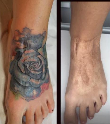 Tatuaje cubrir cicatriz en el pie 2