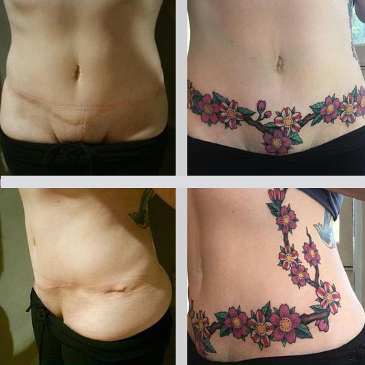 Tatuajes tapar cicatrices en el abdomen