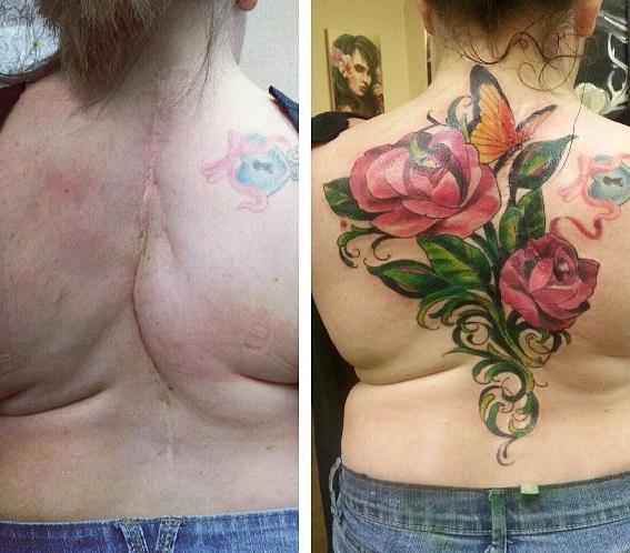 Tatuajes tapar cicatrices en la espalda