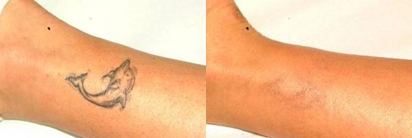 Eliminar tatuaje láser antes y después